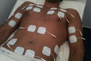 Elektrische Muskelstimulation EMS