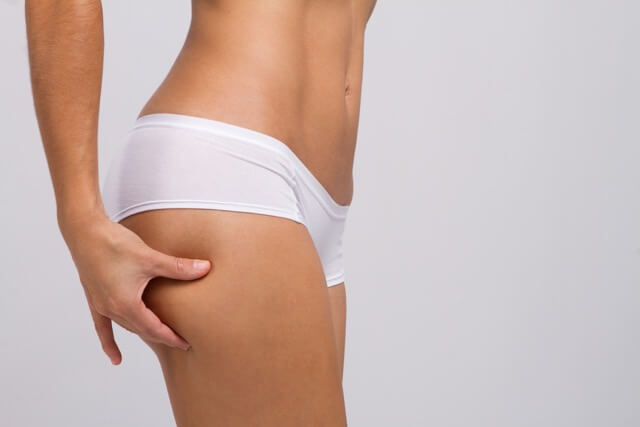 Cellulite Kneiftest