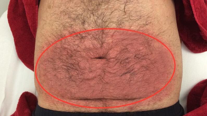 Nach Kryolipolyse Bauch - Größeres Areal mit Komplett-Kälte