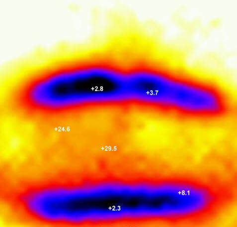 Ergebnis Kryolipolyse Bauch mit Kühlpaneele-Applikator - Keine Durchkühlung