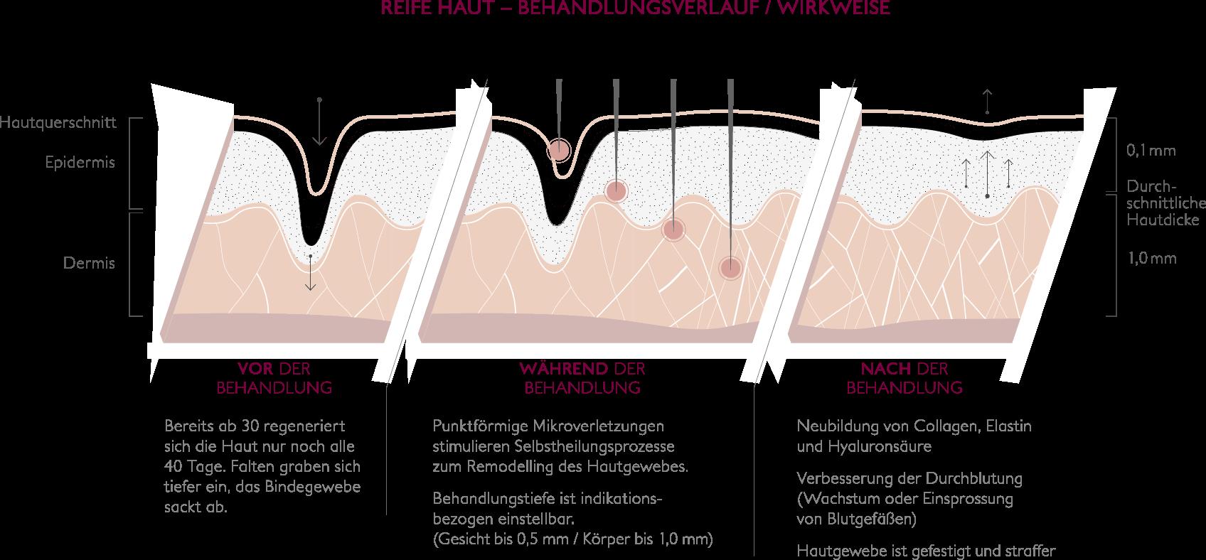 Micro Needling Vor-während-danach